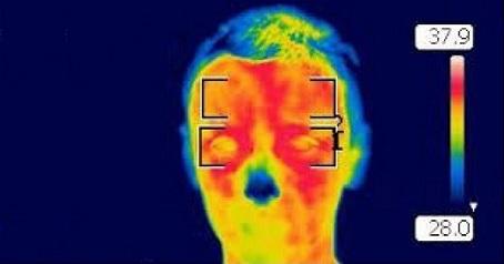 Control temperatura corporal